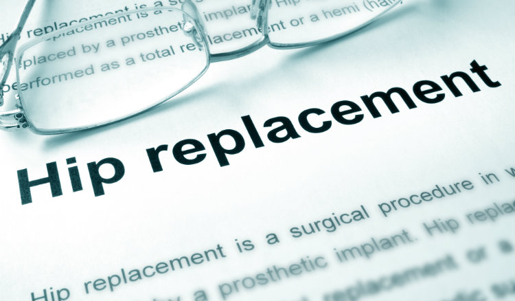 Hip Replacement failure